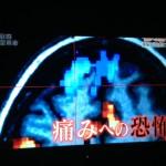 『腰痛治療革命-NHKスペシャル』を見て