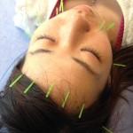 〈美容鍼灸〉-健康と美しさを手に入れる!-