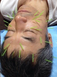 美容鍼灸の施術風景