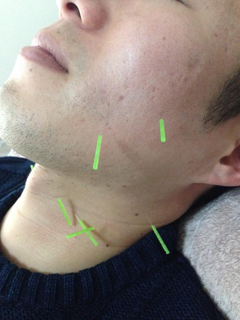呉市の鍼灸院・整体院【悠心堂】の広島市西区での美容鍼灸の勉強会